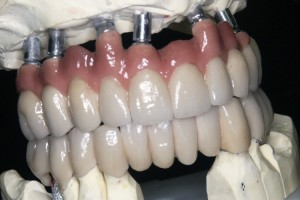 Implantoprotetika